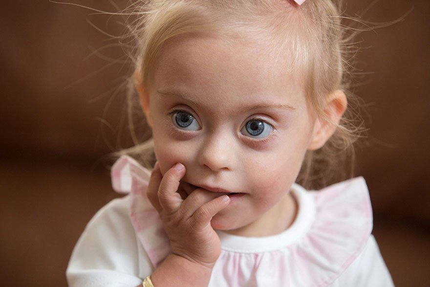 Mała modelka z zespołem Downa