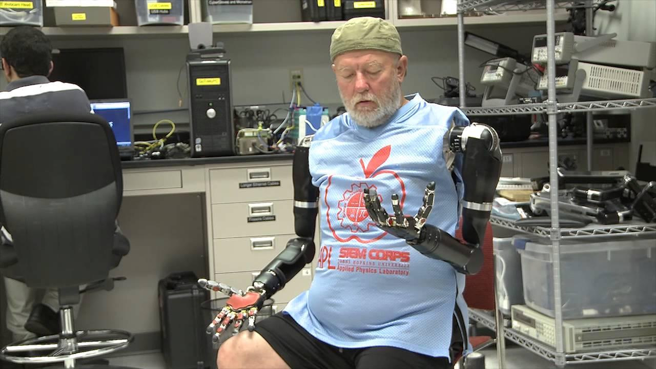 Les Baugh otrzymał protezy poruszane siłą myśli