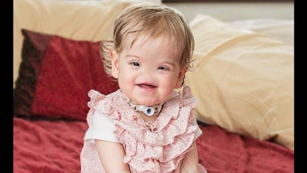 Dziewczynka urodzona bez nosa przeszła pionierską operację