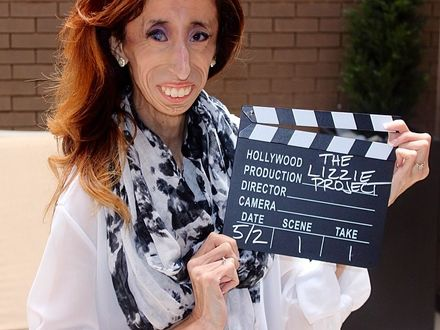 """Nazywana """"najbrzydszą kobietą na świecie"""" zbiera pieniądze na film o swoim życiu"""