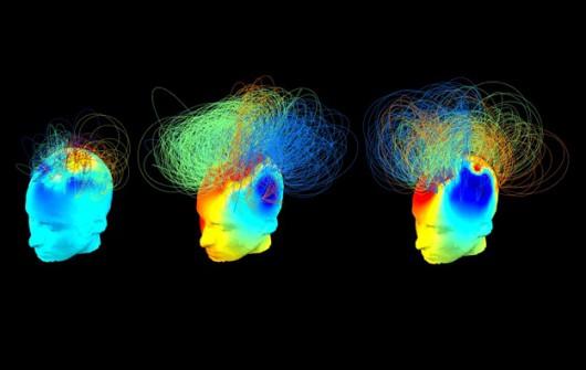 UK – Odkryto metodę diagnozowania świadomości pacjentów pozostających w stanie śpiączki
